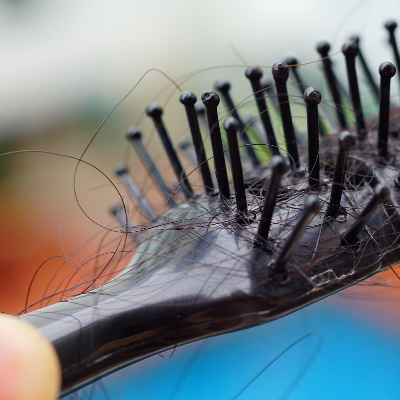 自毛植毛|間違いだらけの薄毛治療をやめて、自分の髪と人生を取り戻す