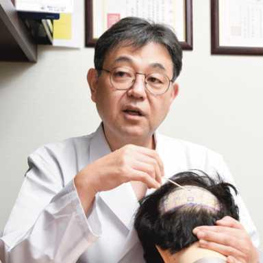 自毛植毛の最前線医師に聞く!情報があふれる薄毛治療 何が正解なのか?